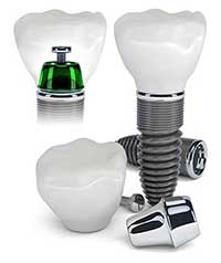 Dental Implants in Shelby Township